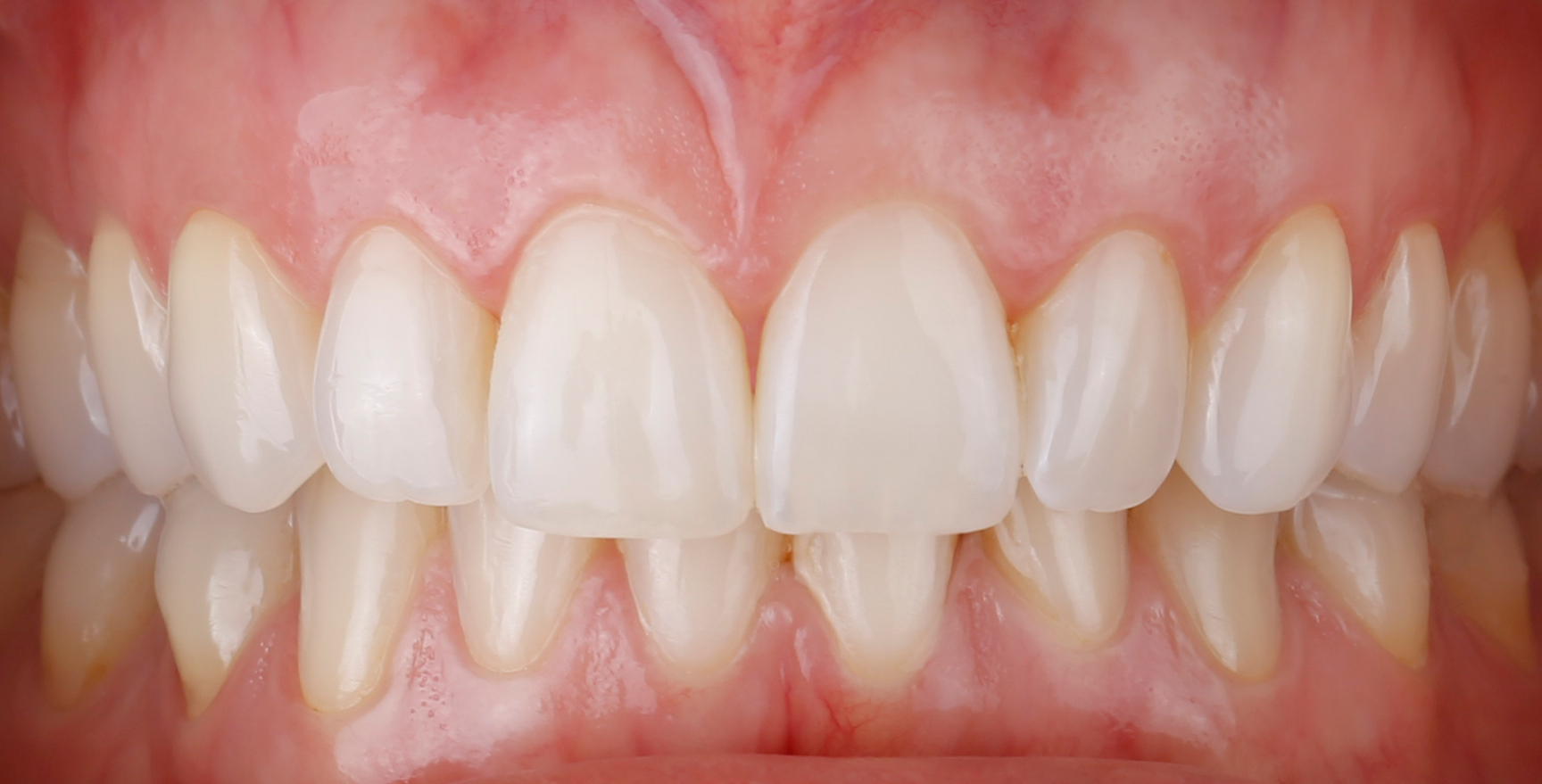 Ästhetische Zahnheilkunde, Schöne Zähne, schönes Lächeln